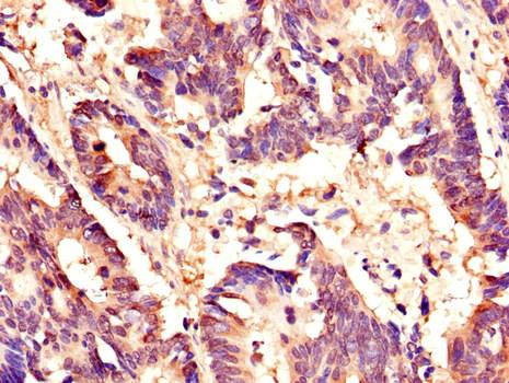 Immunohistochemistry of paraffin-embedded human colon cancer using HCFC1 Antibody at dilution of 1:100