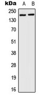 HCF1 / HCFC1 Antibody - Western blot analysis of HCFC1 expression in HeLa (A); mouse brain (B) whole cell lysates.