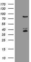 HEK293T cells were transfected with the pCMV6-ENTRY control (Left lane) or pCMV6-ENTRY HCFC2 (Right lane) cDNA for 48 hrs and lysed. Equivalent amounts of cell lysates (5 ug per lane) were separated by SDS-PAGE and immunoblotted with anti-HCFC2.