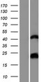 hCG_1657980 Protein - Western validation with an anti-DDK antibody * L: Control HEK293 lysate R: Over-expression lysate
