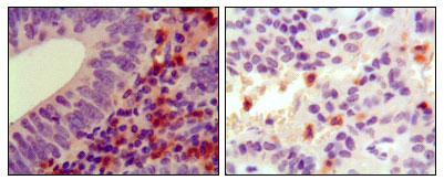 HCK Antibody - IHC of paraffin-embedded human colon cancer (left) and pancreas cancer (right), showing cytoplasmic localization using HCK mouse monoclonal antibody with DAB staining.