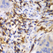 HCLS1 Antibody - Immunohistochemistry of paraffin-embedded human liver cancer tissue.