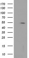 HDAC1 Antibody - HEK293T cells were transfected with the pCMV6-ENTRY control (Left lane) or pCMV6-ENTRY HDAC1 (Right lane) cDNA for 48 hrs and lysed. Equivalent amounts of cell lysates (5 ug per lane) were separated by SDS-PAGE and immunoblotted with anti-HDAC1.
