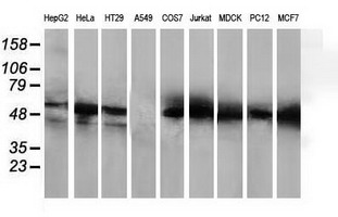 HDAC1 Antibody - Western blot of extracts (35 ug) from 9 different cell lines by using anti-HDAC1 monoclonal antibody.