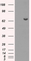 HEK293T cells were transfected with the pCMV6-ENTRY control (Left lane) or pCMV6-ENTRY HDAC10 (Right lane) cDNA for 48 hrs and lysed. Equivalent amounts of cell lysates (5 ug per lane) were separated by SDS-PAGE and immunoblotted with anti-HDAC10.