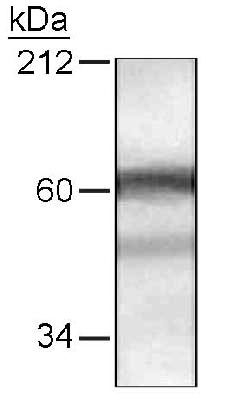 Western blot of HDAC10 in HeLa cells with antibody at a 1:250 dilution.