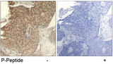 Immunohistochemistry of paraffin-embedded human breast carcinoma tissue using Rabbit Anti-HDAC2 (Phospho-Ser394) Polyclonal Antibody.