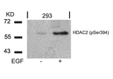 Western blot of extracts from 293 cells untreated or treated with EGF using HDAC2 (Phospho-Ser394) antibody.