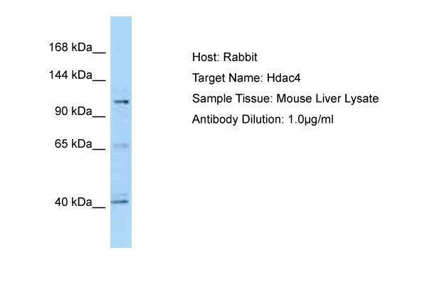 HDAC4 Antibody -  This image was taken for the unconjugated form of this product. Other forms have not been tested.