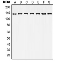 HDAC6 Antibody - Western blot analysis of Histone Deacetylase 6 expression in Jurkat (A); HeLa (B); NIH3T3 (C); K562 (D); MCF7 (E); mouse brain (F); rat brain (G) whole cell lysates.