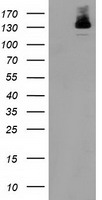 HDAC6 Antibody - HEK293T cells were transfected with the pCMV6-ENTRY control (Left lane) or pCMV6-ENTRY HDAC6 (Right lane) cDNA for 48 hrs and lysed. Equivalent amounts of cell lysates (5 ug per lane) were separated by SDS-PAGE and immunoblotted with anti-HDAC6.