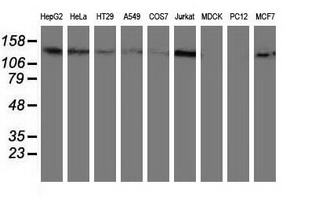 HDAC6 Antibody - Western blot of extracts (35 ug) from 9 different cell lines by using anti-HDAC6 monoclonal antibody.