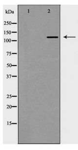 HDAC6 Antibody - Western blot of HDAC6 expression in HepG2 cell lysate
