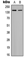 HDAC6 Antibody - Western blot analysis of Histone Deacetylase 6 (pS22) expression in HepG2 (A); HeLa (B) whole cell lysates.