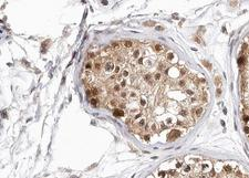 HDAC6 Antibody - 1:100 staining human Testis tissue by IHC-P. The tissue was formaldehyde fixed and a heat mediated antigen retrieval step in citrate buffer was performed. The tissue was then blocked and incubated with the antibody for 1.5 hours at 22°C. An HRP conjugated goat anti-rabbit antibody was used as the secondary.