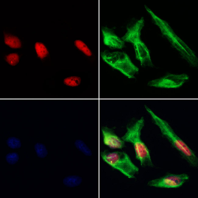 HDGFRP3 Antibody - Staining HeLa cells by IF/ICC. The samples were fixed with PFA and permeabilized in 0.1% Triton X-100, then blocked in 10% serum for 45 min at 25°C. Samples were then incubated with primary Ab(1:200) and mouse anti-beta tubulin Ab(1:200) for 1 hour at 37°C. An AlexaFluor594 conjugated goat anti-rabbit IgG(H+L) Ab(1:200 Red) and an AlexaFluor488 conjugated goat anti-mouse IgG(H+L) Ab(1:600 Green) were used as the secondary antibod