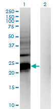 Western Blot analysis of HDHD1A expression in transfected 293T cell line by HDHD1A monoclonal antibody (M05), clone 4F12.Lane 1: HDHD1A transfected lysate (Predicted MW: 23.7 KDa).Lane 2: Non-transfected lysate.
