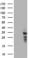 HEK293T cells were transfected with the pCMV6-ENTRY control (Left lane) or pCMV6-ENTRY HDHD1 (Right lane) cDNA for 48 hrs and lysed. Equivalent amounts of cell lysates (5 ug per lane) were separated by SDS-PAGE and immunoblotted with anti-HDHD1.