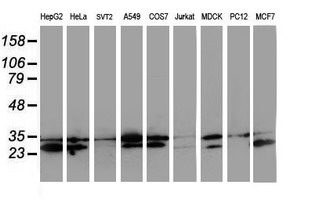 Western blot of extracts (35 ug) from 9 different cell lines by using anti-HDHD1 monoclonal antibody.