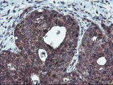 IHC of paraffin-embedded Carcinoma of Human lung tissue using anti-HDHD1 mouse monoclonal antibody.