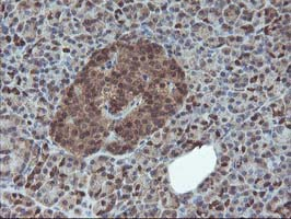 IHC of paraffin-embedded Human pancreas tissue using anti-HDHD1 mouse monoclonal antibody.