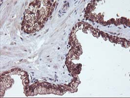 IHC of paraffin-embedded Carcinoma of Human prostate tissue using anti-HDHD1 mouse monoclonal antibody.