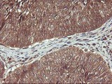 IHC of paraffin-embedded Carcinoma of Human bladder tissue using anti-HDHD1 mouse monoclonal antibody.