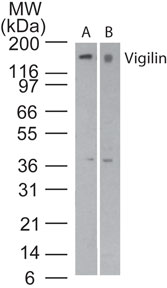 Western blot of Vigilin in A) Jurkat cell lysate and B) RAW cell lysate using Polyclonal Antibody to Vigilin/HDLBP at 3 and 5 ug/ml, respectively. Goat anti-rabbit Ig HRP secondary antibody, and PicoTect ECL substrate solution, were used for this test.