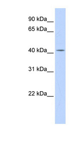 DHDDS antibody Western blot of Placenta lysate. This image was taken for the unconjugated form of this product. Other forms have not been tested.