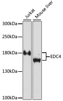 HEDLS / EDC4 Antibody - Western blot analysis of extracts of various cell lines, using EDC4 antibody at 1:1000 dilution. The secondary antibody used was an HRP Goat Anti-Rabbit IgG (H+L) at 1:10000 dilution. Lysates were loaded 25ug per lane and 3% nonfat dry milk in TBST was used for blocking. An ECL Kit was used for detection and the exposure time was 30s.