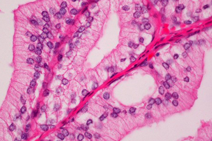 Product - Prostate section stained with Hematoxylin & Eosin Stain Kit (cytoplasm, pink; nuclei, blue).