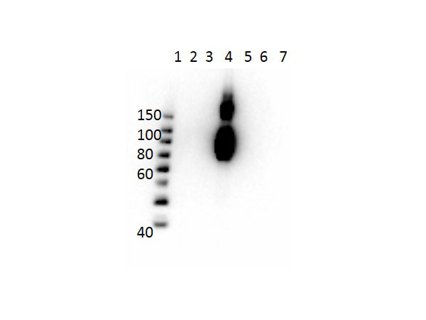Hemoglobin C Antibody - Western Blot of Mouse Anti-Hemoglobin beta C Antibody. Lane 1: Molecular Weight Ladder. Lane 2: HbA peptide conjugated to BSA. Lane 3: HbA-2 peptide conjugated to BSA. Lane 4: HbC peptide conjugated to BSA. Lane 5: HbF peptide conjugated to BSA. Lane 6: HbS peptide conjugated to BSA. Lane 7: BSA alone. Load: 50ng per lane. Primary antibody: Anti-HbC antibody at 1µg/mL overnight at 4°C. Secondary antibody: Rabbit Anti-Mouse secondary antibody at 1:40,000 for 30 min at RT. Block: MB-073 for 30 min RT. Predicted/Observed: Reactivity seen in Lane 4 specific to HbC only.