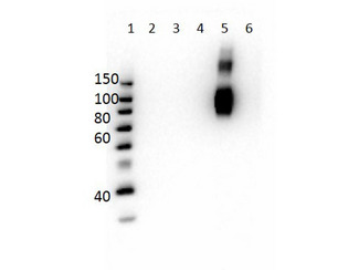 Hemoglobin Gamma (HBG1 + HBG2) Antibody - Western Blot of Mouse Anti-Hemoglobin beta F Antibody. Lane 1: Molecular Weight Ladder. Lane 2: HbA peptide conjugated to BSA. Lane 3: HbA-2 peptide conjugated to BSA. Lane 4: HbC peptide conjugated to BSA. Lane 5: HbF peptide conjugated to BSA. Lane 6: HbS peptide conjugated to BSA. Load: 50ng per lane. Primary antibody: Anti-HbF antibody at 1µg/mL overnight at 4°C. Secondary antibody: Rabbit Anti-Mouse secondary antibody at 1:40,000 for 30 min at RT. Block: MB-073 for 30 min RT. Predicted/Observed: Reactivity seen in Lane 5 specific to HbF only.