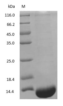(Tris-Glycine gel) Discontinuous SDS-PAGE (reduced) with 5% enrichment gel and 15% separation gel.