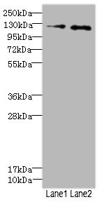 HEPH / Hephaestin Antibody - Western blot All Lanes: HEPH antibody at 2.49ug/ml Lane 1: HepG-2 whole cell lysate Lane 2: Jurkat whole cell lysate Secondary Goat polyclonal to rabbit IgG at 1/10000 dilution Predicted band size: 131,137,101 kDa Observed band size: 130 kDa