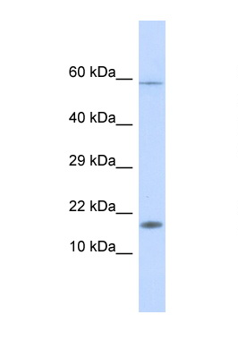HERC4 antibody LS-C135125 Western blot of Fetal Liver lysate. Antibody concentration 1 ug/ml.  This image was taken for the unconjugated form of this product. Other forms have not been tested.