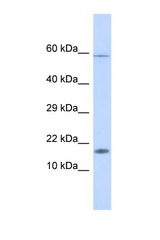 HERC4 antibody Western blot of Fetal Liver lysate. Antibody concentration 1 ug/ml. This image was taken for the unconjugated form of this product. Other forms have not been tested.