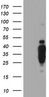 HEK293T cells were transfected with the pCMV6-ENTRY control (Left lane) or pCMV6-ENTRY HES1 (Right lane) cDNA for 48 hrs and lysed. Equivalent amounts of cell lysates (5 ug per lane) were separated by SDS-PAGE and immunoblotted with anti-HES1.