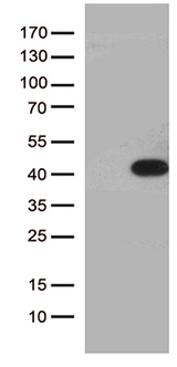 HEYL Antibody - HEK293T cells were transfected with the pCMV6-ENTRY control. (Left lane) or pCMV6-ENTRY HEYL. (Right lane) cDNA for 48 hrs and lysed. Equivalent amounts of cell lysates. (5 ug per lane) were separated by SDS-PAGE and immunoblotted with anti-HEYL. (1:2000)