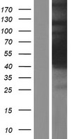 HGH1 / FAM203A Protein - Western validation with an anti-DDK antibody * L: Control HEK293 lysate R: Over-expression lysate