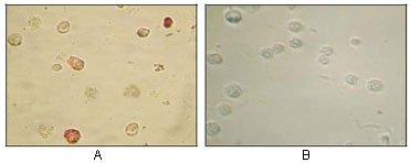 HHV-8 ORF45 Antibody - ICC of TPA induced BCBL-1 cells (A) and uninduced BCBL-1 cells (B) using KSHV ORF45 mouse monoclonal antibody with AEC staining.