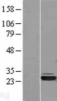 HIBADH Protein - Western validation with an anti-DDK antibody * L: Control HEK293 lysate R: Over-expression lysate