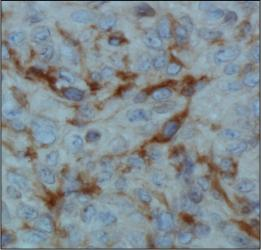 Factor Inhibiting HIF-1 Antibody (162c) - IHC of FIH in human renal cancer using DAB with hematoxylin counterstain.  This image was taken for the unconjugated form of this product. Other forms have not been tested.