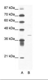 A: Marker, B: Jurkat Cell Lysate.  This image was taken for the unconjugated form of this product. Other forms have not been tested.