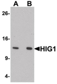HIGD1A Antibody - Western blot of HIG1 in 293 cell lysate with HIG1 antibody at at (A) 0.5 and (B) 1 ug/ml.