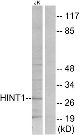 Western blot analysis of lysates from Jurkat cells, using HINT1 Antibody. The lane on the right is blocked with the synthesized peptide.