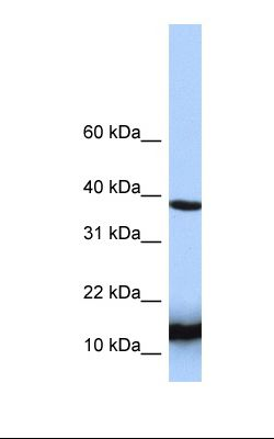Jurkat cell lysate. Antibody concentration: 1.0 ug/ml. Gel concentration: 10-20%.  This image was taken for the unconjugated form of this product. Other forms have not been tested.