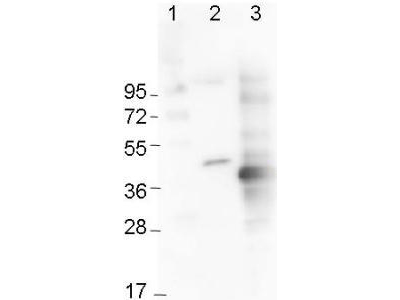 His Tag Antibody - Anti-6x-His Epitope Tag Monoclonal Antibody - Western Blot. Western blot of Immunochemicals Mouse Anti-6x-His Epitope Tag Monoclonal Antibody showing detection of the 6xHis sequence on N-terminally-tagged (lane 2) and C-terminally-tagged recombinant proteins (lane 3). In lane 1 are molecular weight markers.