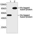 Western blot of His-tagged fusion proteins using His-tag Antibody, pAb, Rabbit (LS-C51077, 1 ug/ml) The signal was developed with One-Step Western Basic Kit. Predicted Size: Lane 1: His-tag fusion protein 52 kD Lane 2: C-term His-tag fusion protein 91 kD Observed Size: Lane 1: His-tag fusion protein 52 kD Lane 2: C-term His-tag fusion protein 91 kD