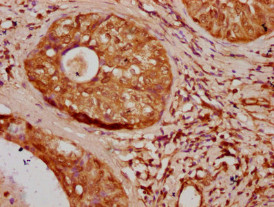Immunohistochemistry Dilution at 1:20 and staining in paraffin-embedded human cervical cancer performed on a Leica BondTM system. After dewaxing and hydration, antigen retrieval was mediated by high pressure in a citrate buffer (pH 6.0). Section was blocked with 10% normal Goat serum 30min at RT. Then primary antibody (1% BSA) was incubated at 4°C overnight. The primary is detected by a biotinylated Secondary antibody and visualized using an HRP conjugated SP system.